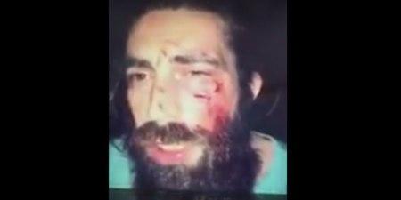 Turkey-Mob-Beating-Mustafa-Turan-Caliskan-HP